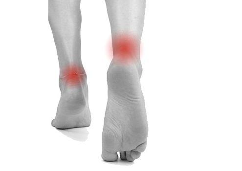 Casos clínicos relacionados con el tobillo y pie