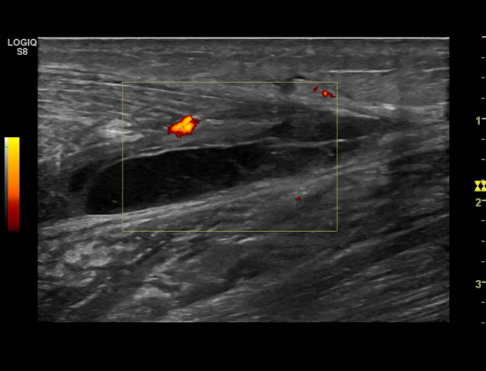 Ultrasound image: Ruptured calf muscle – image depicts a hematoma (blood clot and swelling within the tissues)